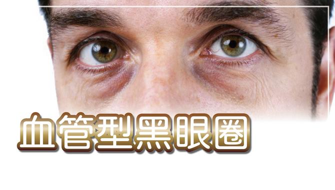 血管型型黑眼圈可以靠醫美改善,了解原因後再針對淚溝注射大分子玻尿酸,效果持久推薦
